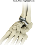 Total Ankle Joint Replacement